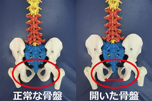 正常な骨盤と開いた骨盤