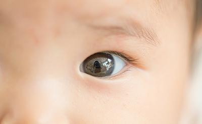 【眼科医監修】新生児の「目やに」の原因別の特徴と上手な取り方