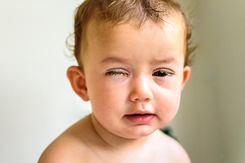 目やにがひどいときや片目だけのときも要注意!